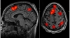 "FMRI scans uncover ""hot spots"" of tellurian mind activity as subjects perform memory tasks."